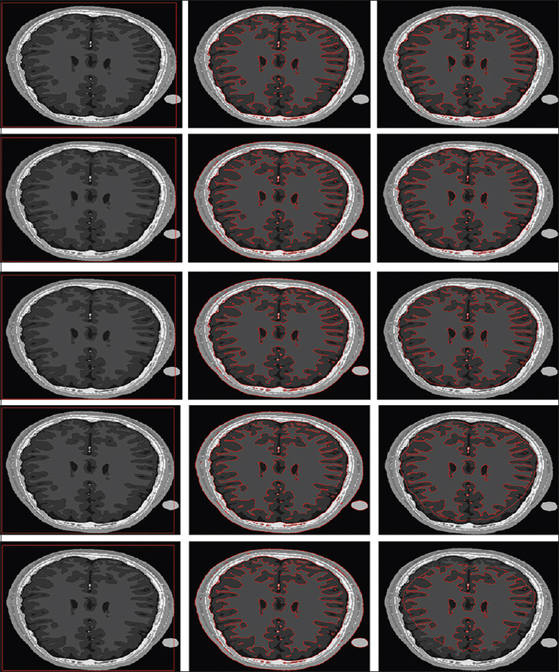 Figure 3: Segmentation on different magnetic resonance images, which shows that our proposed model can be used to analyze medical images to provide necessary information for medical