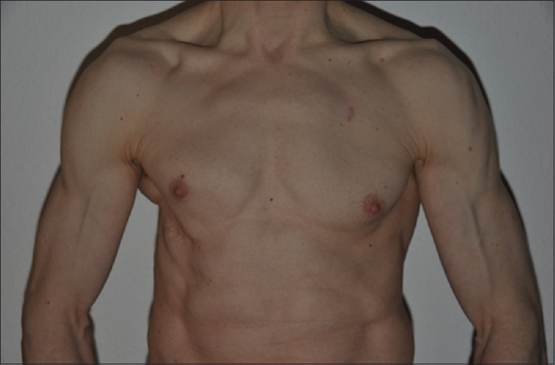 Figure 4: More than 12 years after Figure 3. The permanent muscle damage is relevant due to dissection of the right serratus anterior and latissimus dorsi muscle and other dorsal muscles. Rough estimation of DV2<sup>(4)</sup>: <i>q</i><sub>1</sub>>>20 cm, <i>q</i><sub>2</sub>>>20 cm<sup>2</sup>