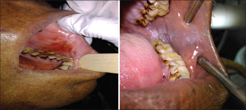 Figure 2: Intraoral photograph shots taken by smartphone